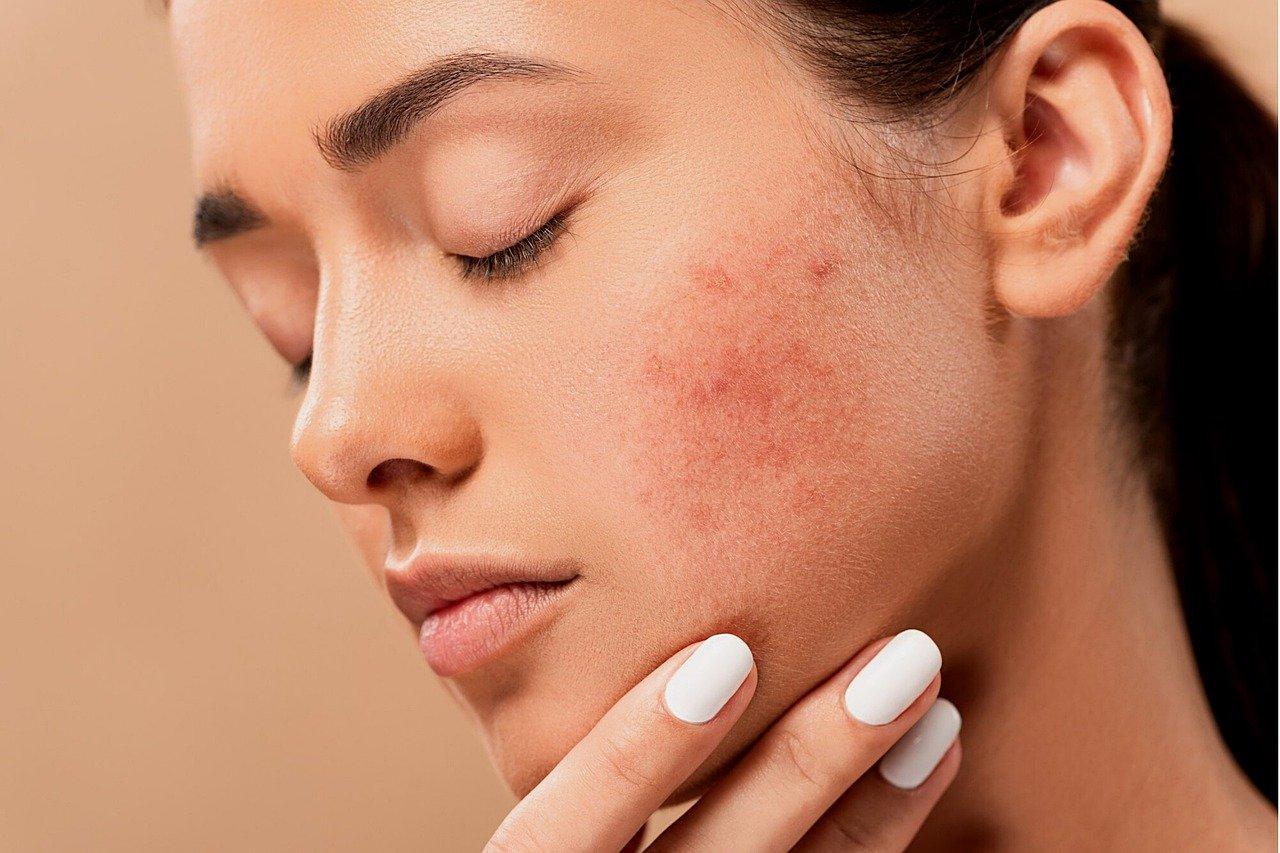 quali sono le malattie della pelle